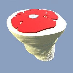 پرینت سه بعدی برای برنامه ریزی پرتو درمانی